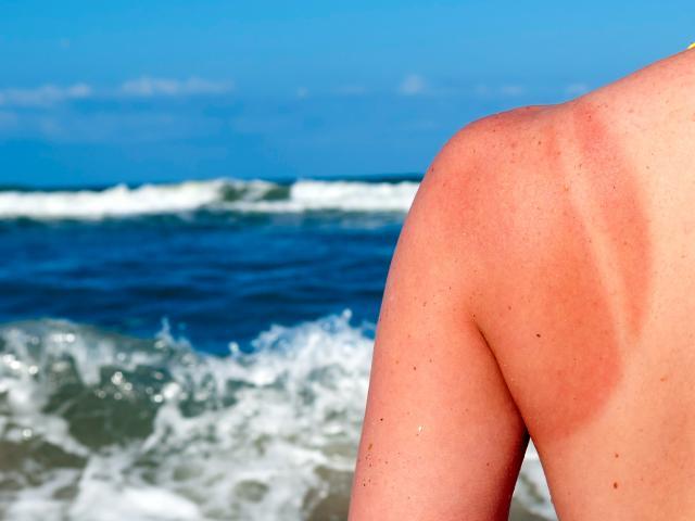 merawat kulit rosak akibat merkuri