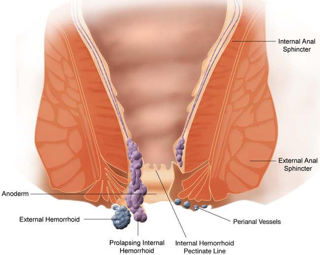 hemorrhoid Merawat Buasir Yang Terkeluar