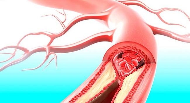 stroke-akibat-kolestrol
