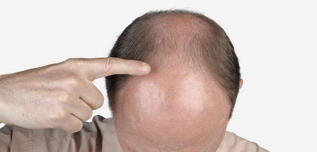masalah-rambut-gugur