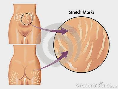 kawasan-selulit-stretchmark