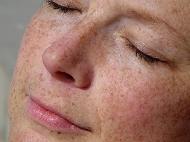 kulit-berbintik