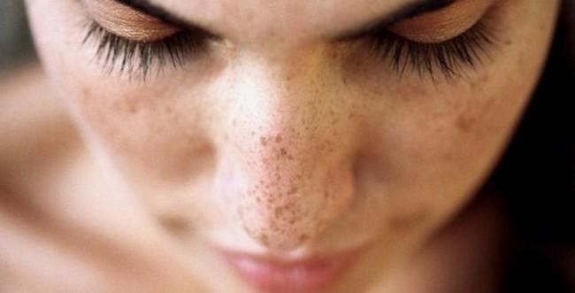 masalah kulit muka kering dan mengelupas