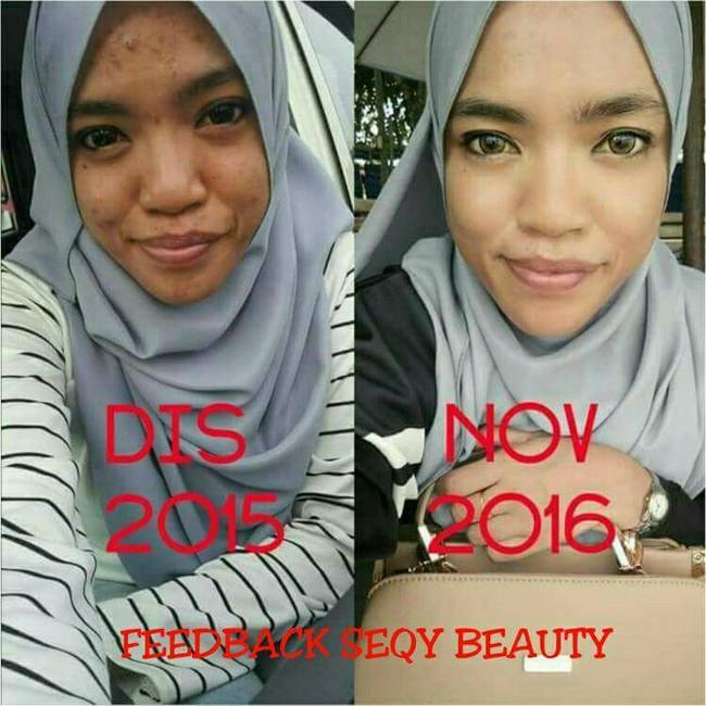 testimoni-beauty-skincare-seqy-beauty-5