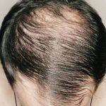 7 Rahsia Atasi Masalah Rambut Sikit dan Botak