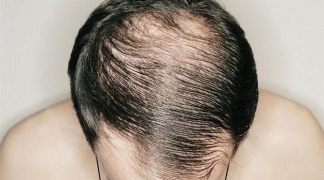 masalah-rambut-lelaki-dan-wanita