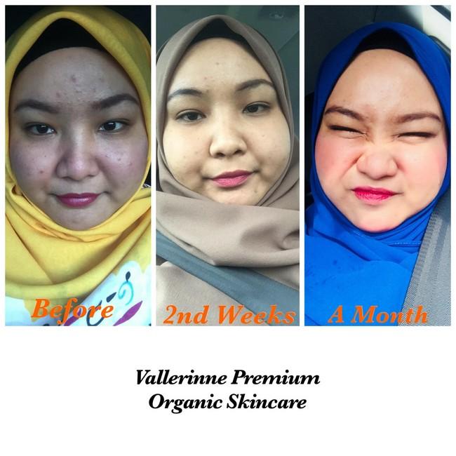 testimoni-pelanggan-vallerine-premium-organic-skincare-2.