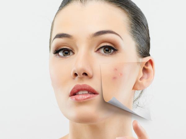 cara-hilangkan-sunburn-dan-pigmentasi