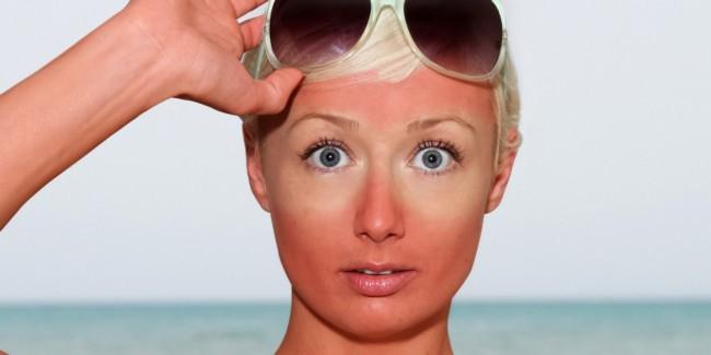 cara nak hilangkan sunburn bagi wanita