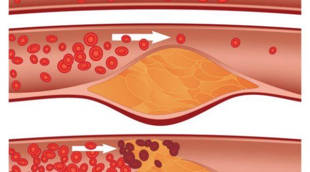 tips turunkan kolesterol jahat