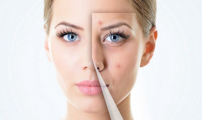 cara menjaga kulit muka 21