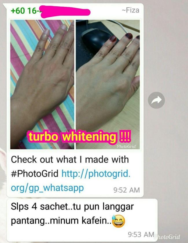 cara putihkan kulit tangan 15