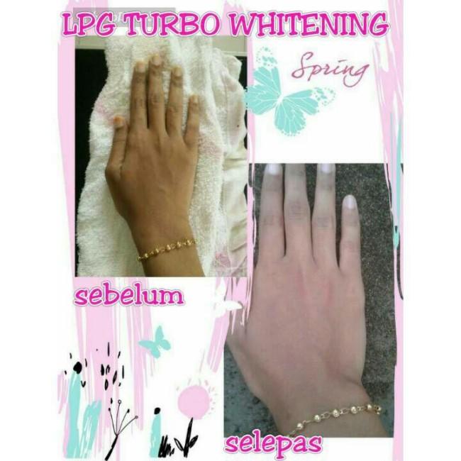 cara putihkan kulit tangan 16