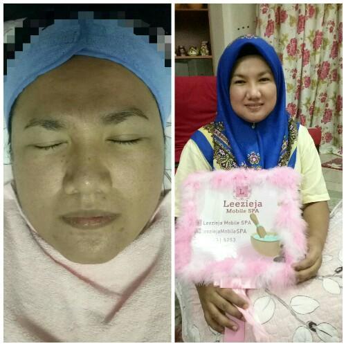 rawatan-resdung dengan rawatan facial - 3