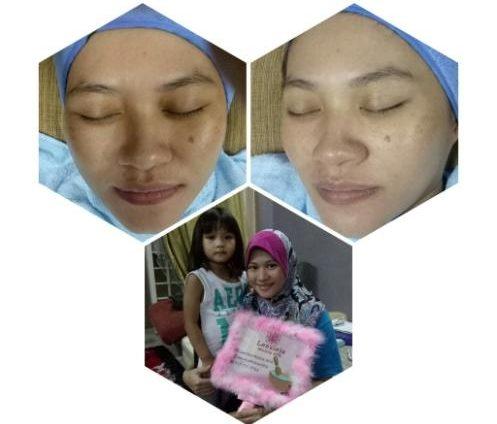 rawatan-resdung dengan rawatan facial - 7