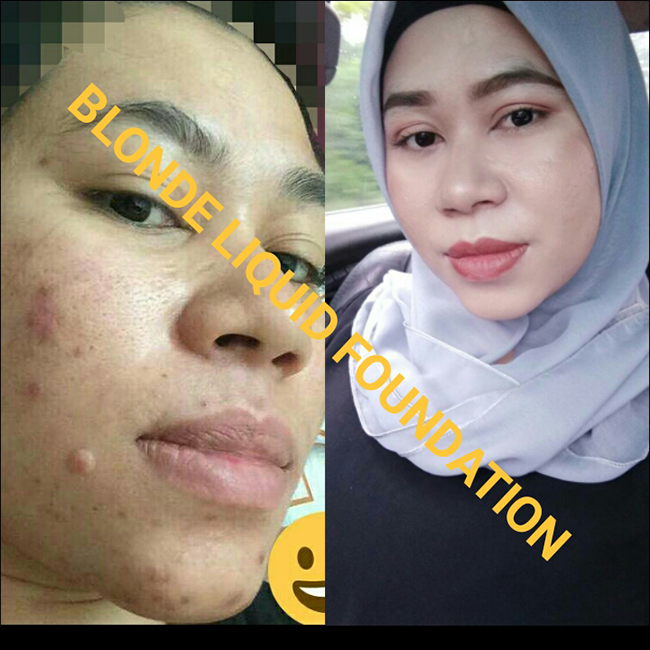 sebelum dan selepas guna blinq liquid foundation