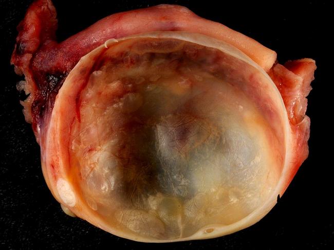 cara mengatasi sengugut dan kecutkan cyst tanpa perlu dibedah