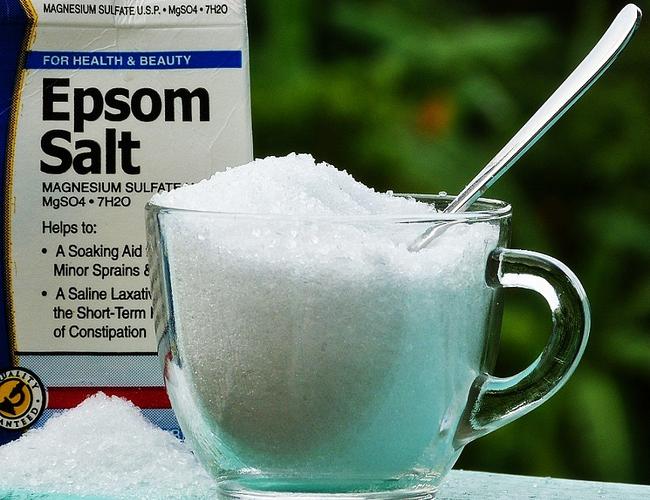 menggunakan epsom salt untuk mengatasi sengugut