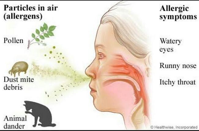 penyakit alahan rhinitis disebabkan udara kotor