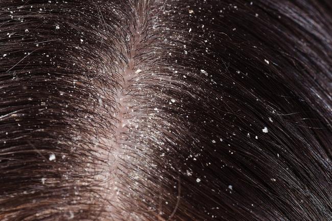 punca rambut rosak menjadi berminyak dan banyak kelemumur