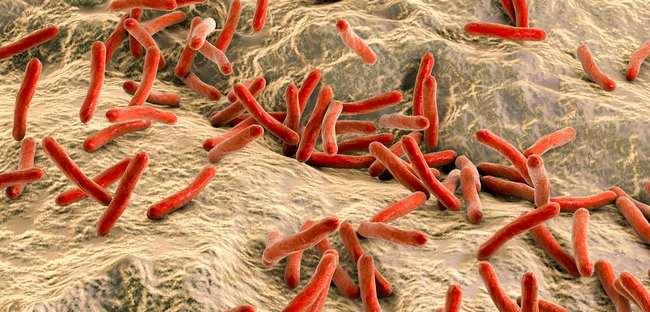 bakteria punca jerawat di muka