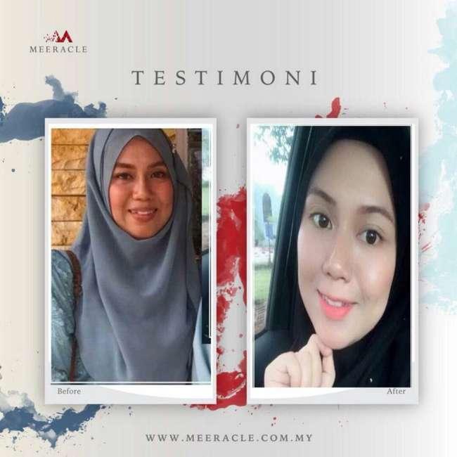 testimoni pengguna meeracle gemstone