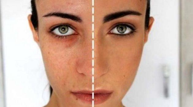 rawatan untuk kulit muka sensitif 2