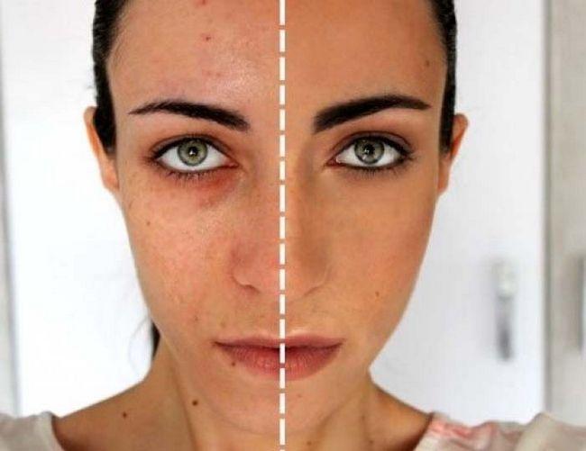rawatan untuk kulit muka sensitif