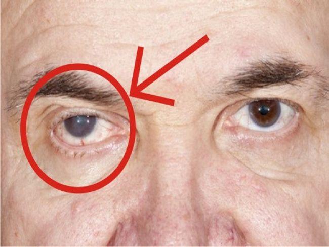 tips penjagaan mata dan cara merawat masalah rabun