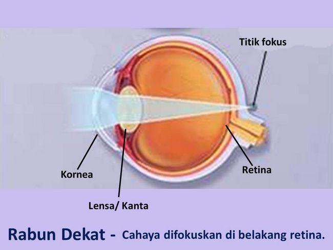 tips penjagaan mata elak rabun dekat