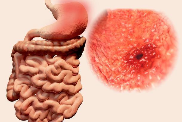 makanan tidak hancur punca gastrik