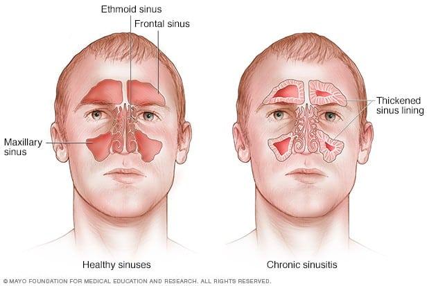 jenis sinus resdung