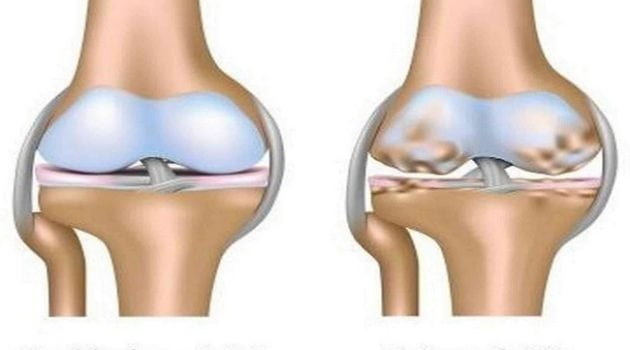 rawat masalah sakit lutut dan sendi
