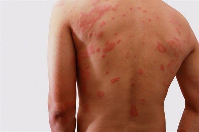 Produk Terbaik Untuk Hilang Gatal-Gatal Kulit hives