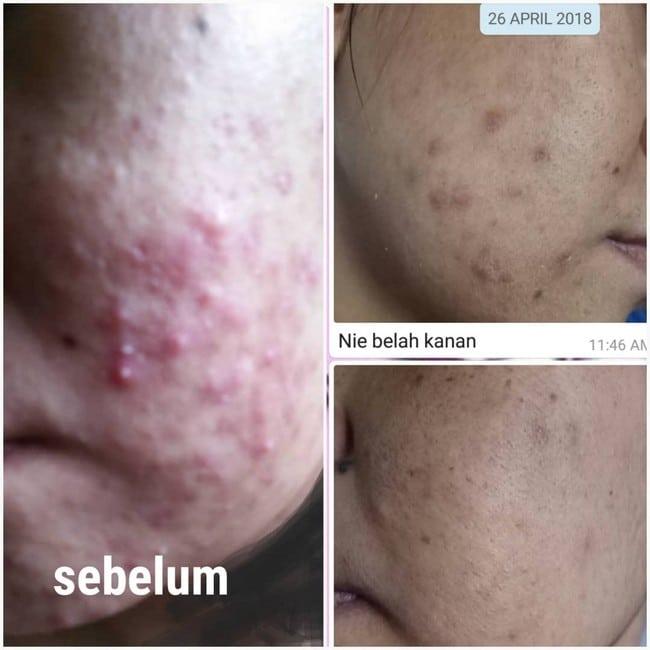 merawat kulit berjerawat
