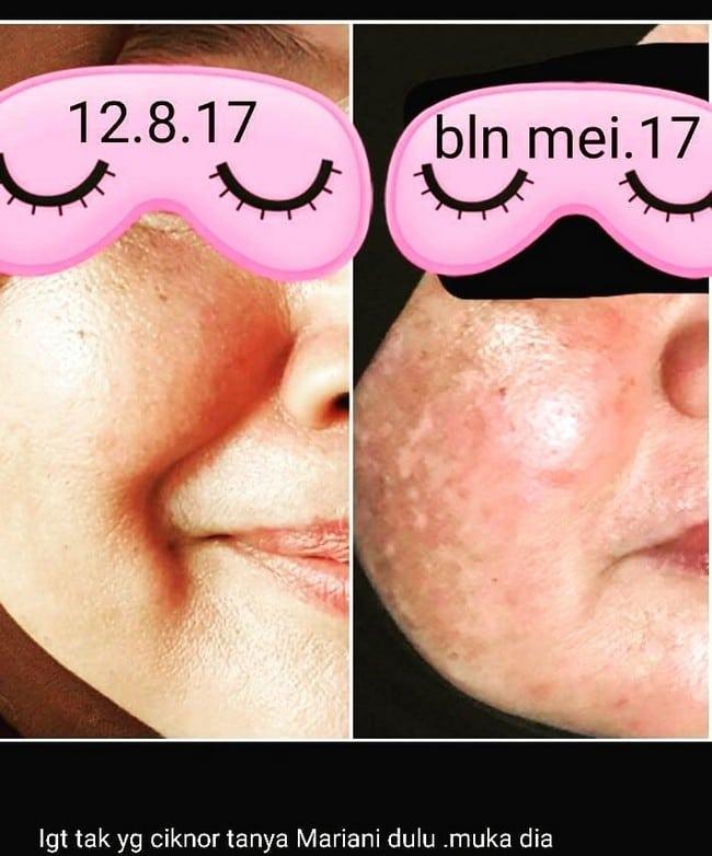 merawat kulit muka berjerawat