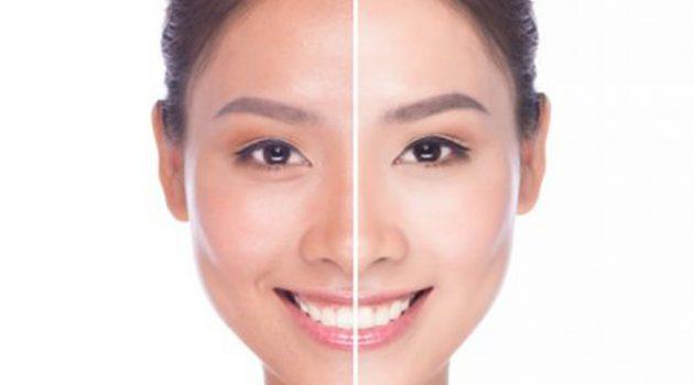 Cara Memulihkan Kulit Wajah 19