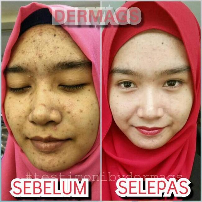 testimoni produk kecantikan semulajadi