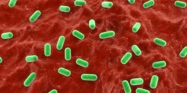 sabun antiseptik untuk kulit gatal