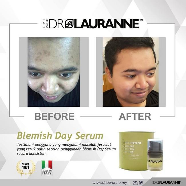 testimoni pengguna dr laurannce skincare