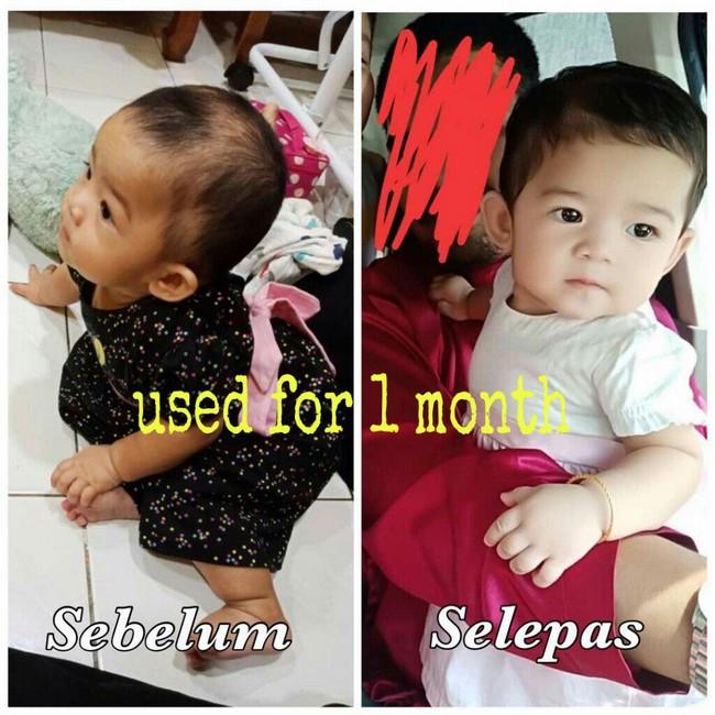 testimoni lebatkan rambut bayi