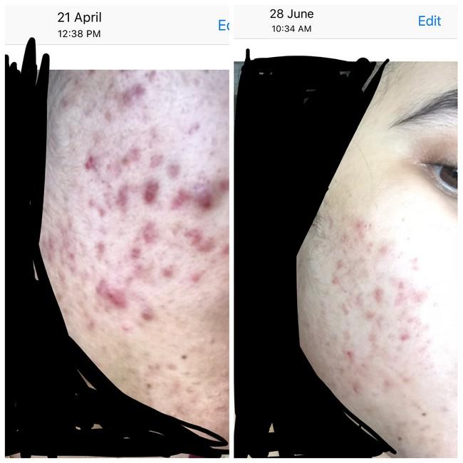 perawatan kulit wajah berjerawat secara manual