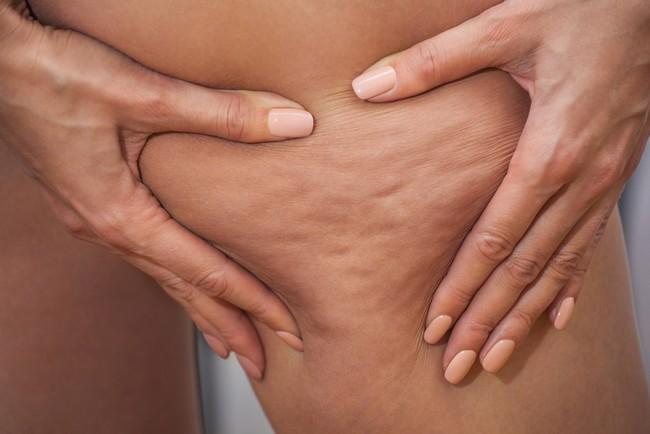 menghilangkan buncit perut