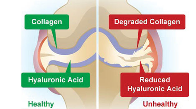 tips untuk sembuhkan sakit lutut sendi dan otot 4