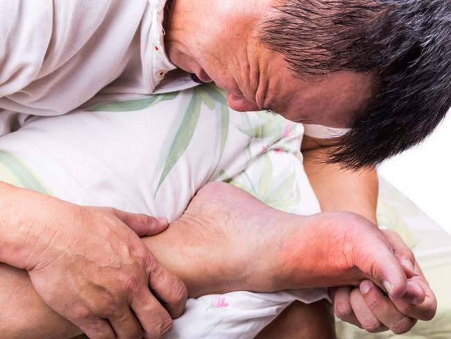 Rawatan Sakit Gout Dengan Cepat 4