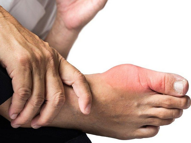 Sakit Gout Menyembuhkan