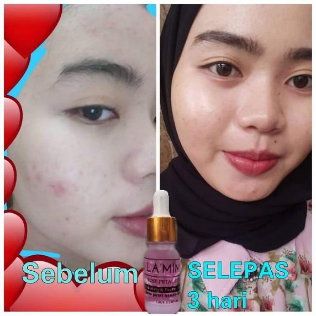 Lamima Skincare KL