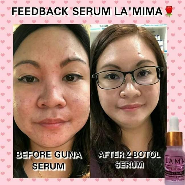 Lamima Skincare Malaysia Baru